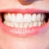Obiecująca alternatywa dla tradycyjnych aparatów na zęby