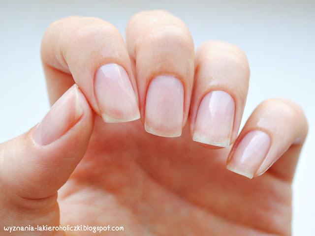 Jakie choroby dotykają paznokcie u nóg?